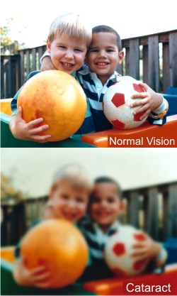 Cataracts cause clouding of the lens inside your eye and vision distortion.